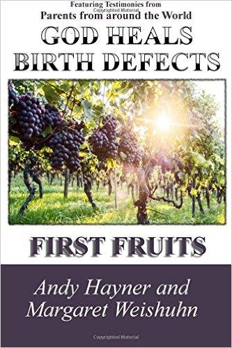 god-heals-birth-defects